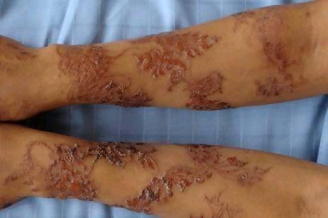 Henna Tattoos On Side